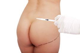 Aumento de glúteos com gordura