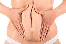 Abdominoplastia em Âncora
