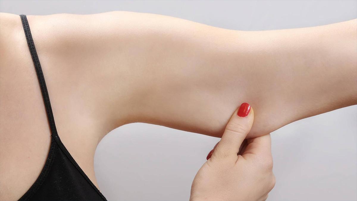 Conheça a braquioplastia — cirurgia plástica nos braços