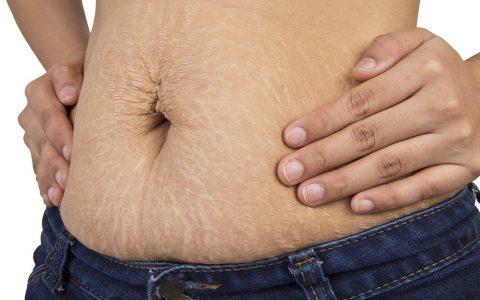 Cirurgia pós-gastroplastia: o que fazer depois da redução de estômago?