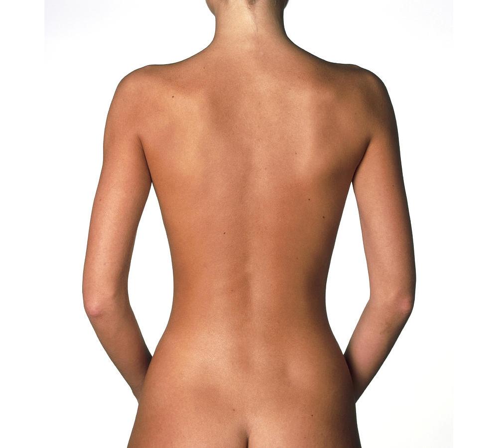 Torsoplastia: descubra o body lift e elimine as dobras da pele